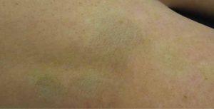 pigmentacion-reparatrice